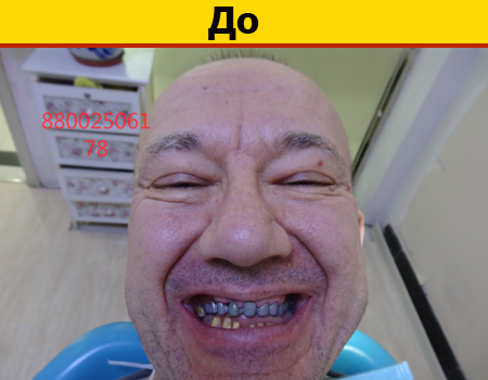 Реставрация зубов в Китае