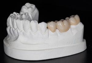 макет челюсти клиента
