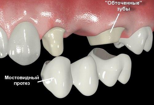 Протезирование зубов в Китае - мостовидный протез