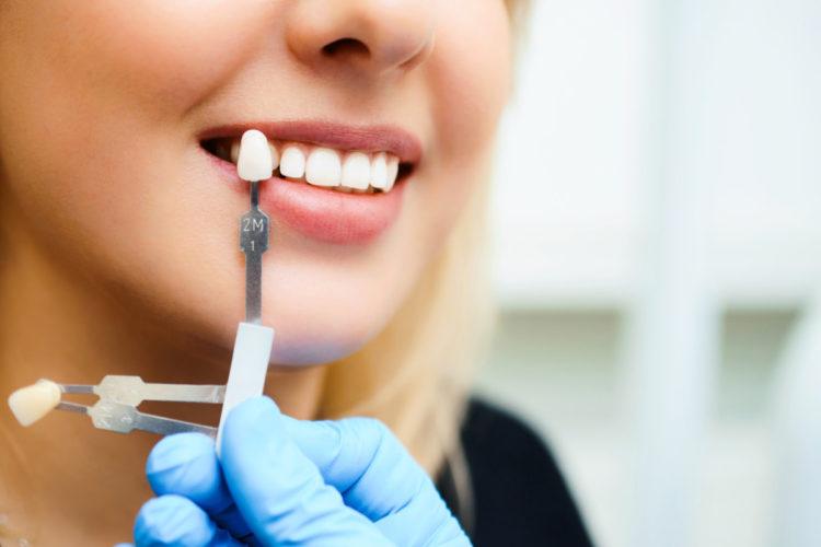 Что такое протезирование зубов и в чем его особенности