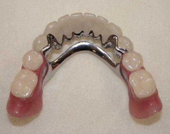 прочие протезы для зубов