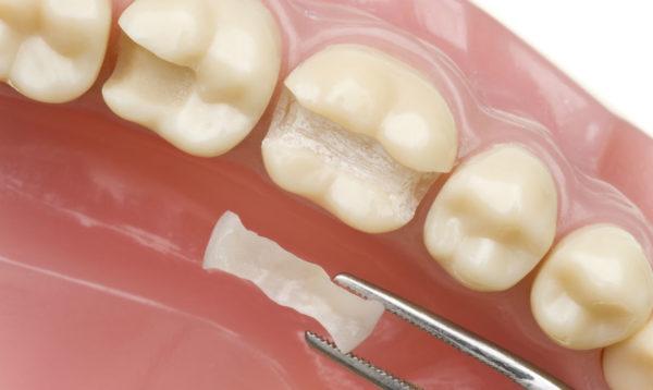 Восстановительные вкладки – это миниатюрные зубные
