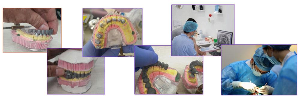 изготовление металлокерамических зубопротезов