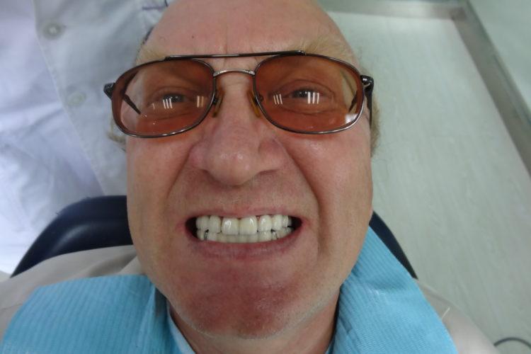 клиент после протезирования в Хэйхэ